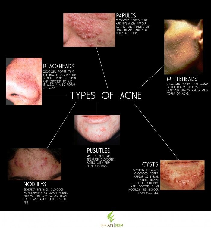 Acne Types: How to Recognize What Kind of Acne You Have