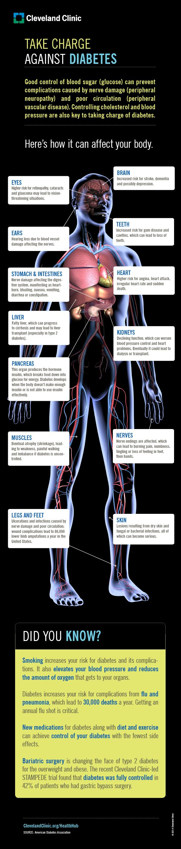 ☤ MD ☞☆☆☆ This infographic of the human body provides an overview of what can happen if diabetes is left unchecked. HealthHub from Cleveland Clinic.