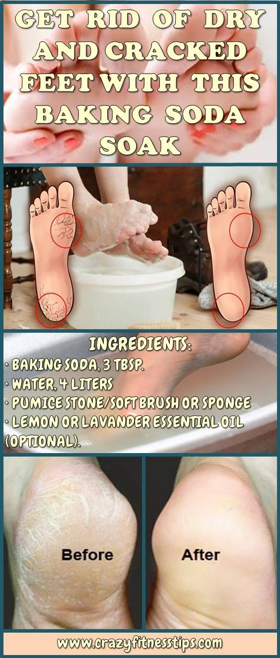 Get Rid of Dry, Cracked Feet With This Baking Soda Soak