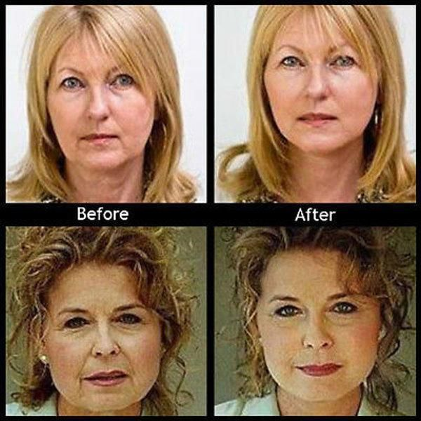 bf1d07f73 The Instant Face Lift Tape lifts and tightens sagging skin and gives a  youthful and glowing look. This non-surgical product can instantly give you  a ...