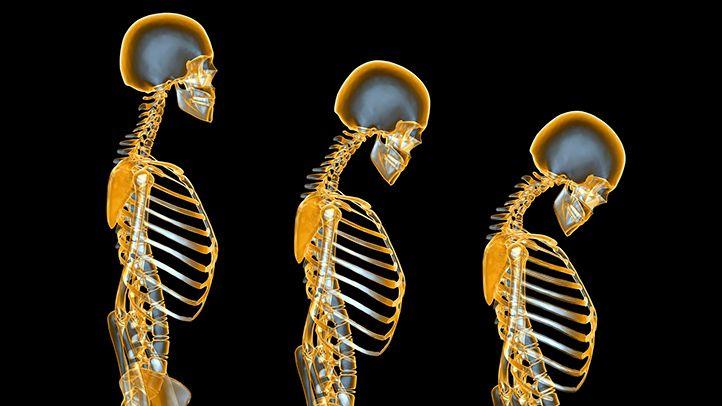 A risky side effect of hot-flash treatment: bone loss. #womenshealth #menopause | everydayhealth.com