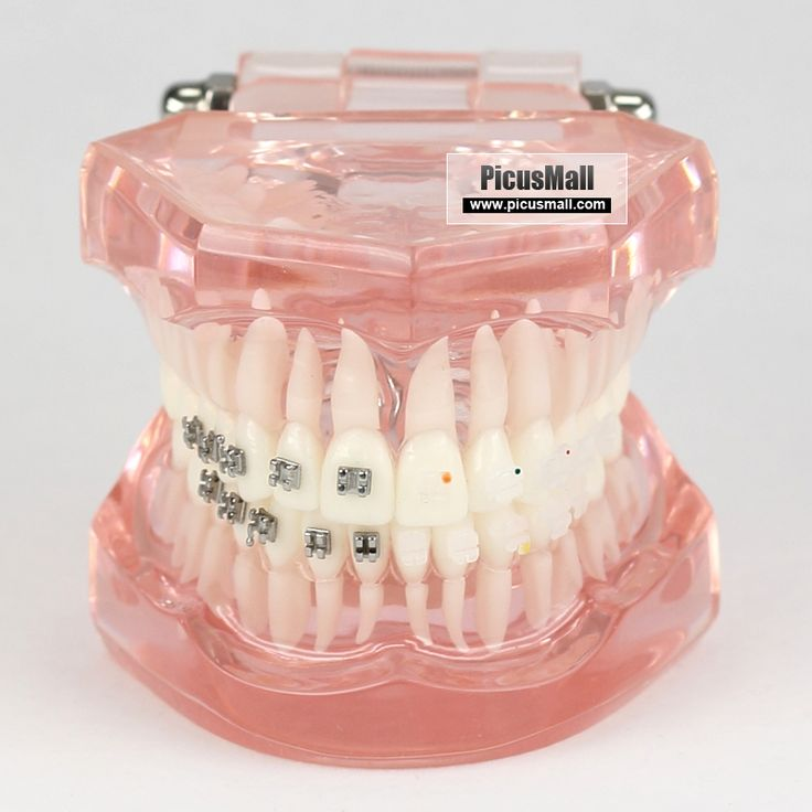 36 Best Images About Ortho Braces On Pinterest Lingual