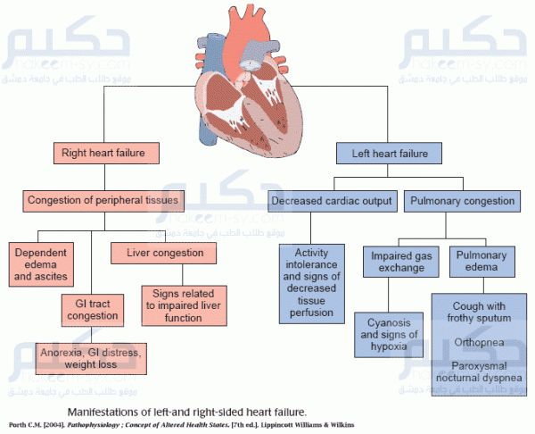 left vs right sided heart failure | Heart Failure | حكيم