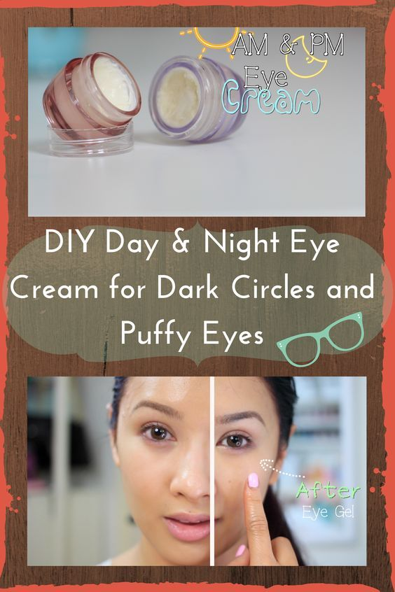DIY Day and Night Eye Cream for Dark Circles and Puffy Eyes... the ingredients are really effective and targets all the under eye problems!