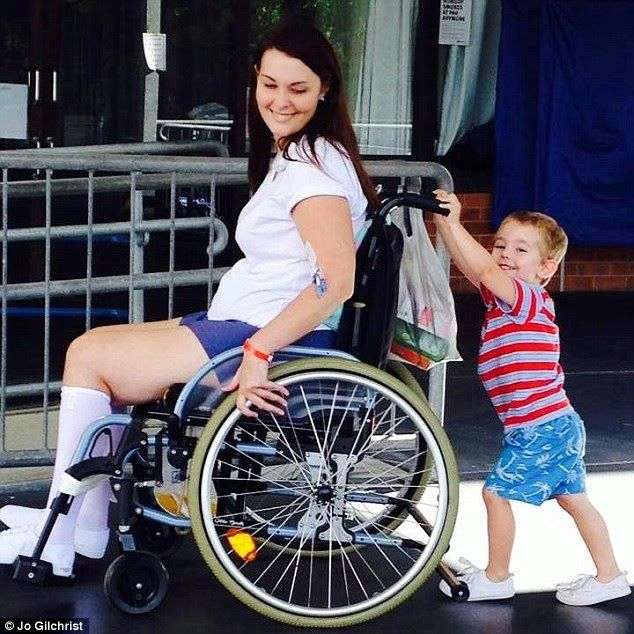 Beauty and the Mist - everything about beauty: Young mum left in a wheelchair for life after catching infection from a friend's make up brush