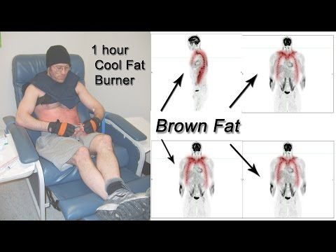 Please only answer if you really know, How to activate brown fat (brown adipose tissue (BAT))?