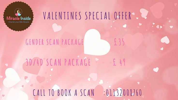 VALENTINES SPECIAL GENDER SCAN OFFER at just £ 35 and 3D/4D SCAN WITH CD at £ 49. For booking call Miracle Inside at 01132008760. #Genderscan #Miracleinside #3d4dscan