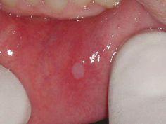 Las úlceras orales, también llamadas de úlceras aftosas, estomatitis aftosas,aftas bucales,llagaso simplementeaftas, son lesiones muy comunes de la mucosa oral. En este texto vamos a explicar l…