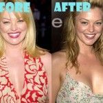 Charlotte Ross Plastic Surgery Before and After Breast Implant