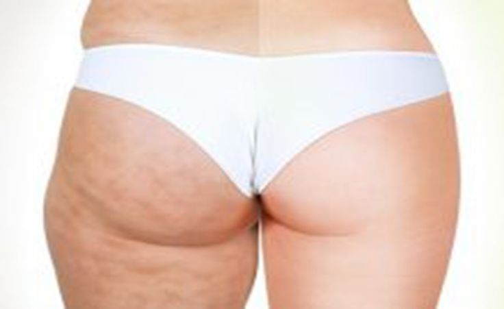 In the pharmacies you can purchase various treatments and creams for removing the cellulite, but undoubtedly the best solution is