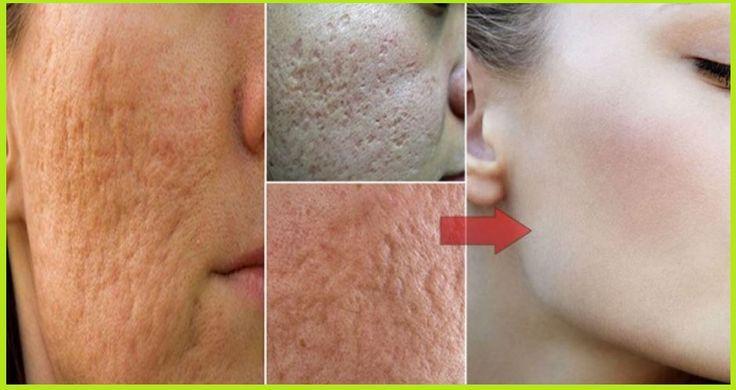 Se necesita sólo 1 artículo para la eliminación de los poros abiertos - en casa!Las personas que tienen piel grasosa también tienen grandes poros. Odian los poros y necesitan hacerlos menos visibles. Usted puede conseguir muchos ...