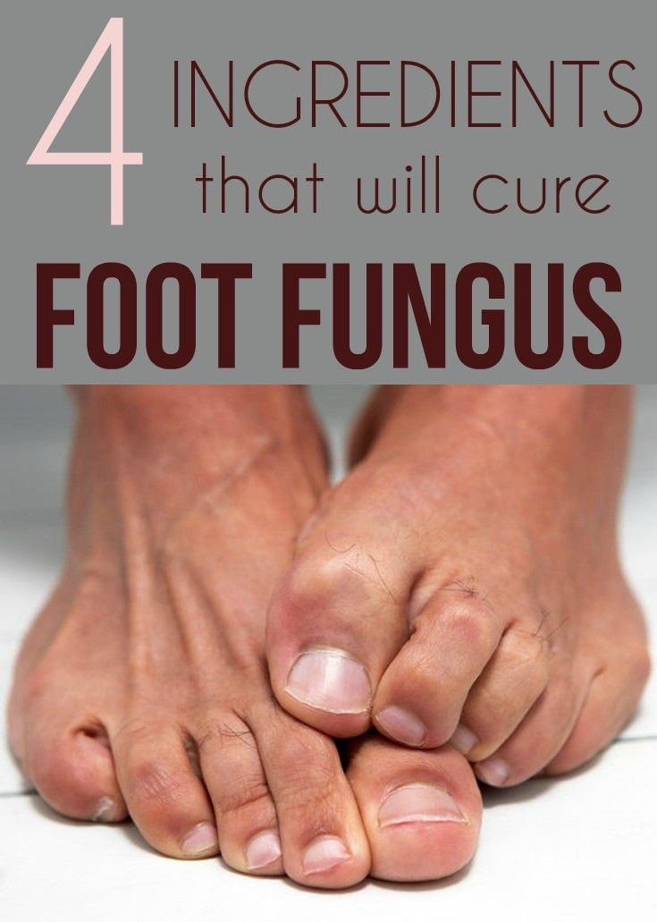 Easy steps to get rid of calluses and toenail fungus.