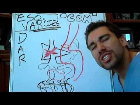 esophageal varices Patho  Labs
