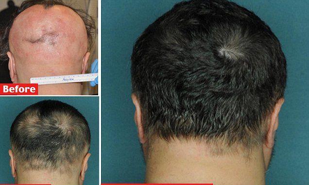 ruxolitinib Pill that can cure baldness in five months
