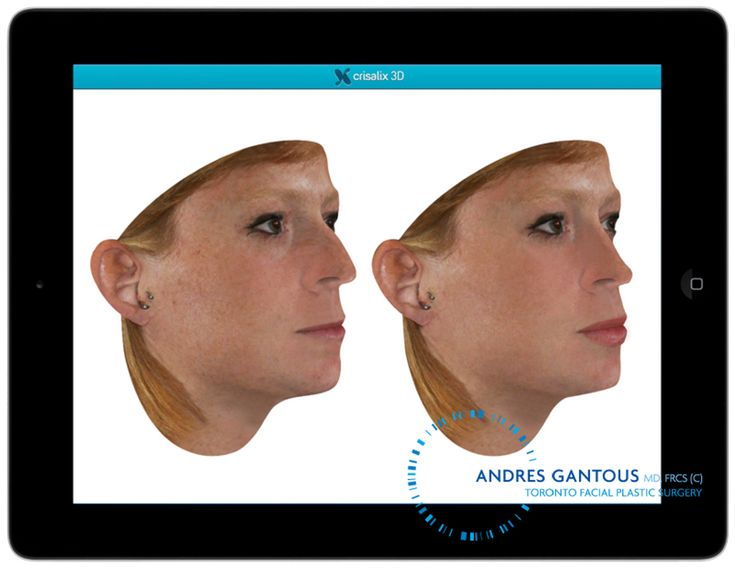 Ever wondered what you would look like with a slimmer nose, bigger bust, or more chiseled jaw? When you book a consultation with Dr. Andres Gantous, you'll have the option of using Crisalix 3D simulations to see your final results before the procedure. #Crisalix3D #simulation #plasticsurgery #torontoplasticsurgeon