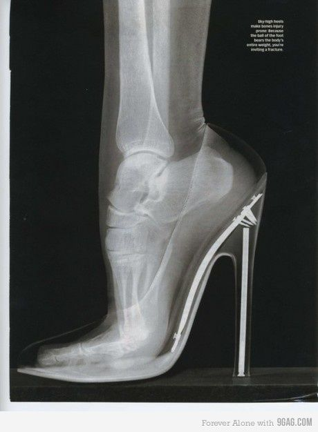 zoinks.Shoes, Wear Heels, Fashion, Bones, Beautiful, Highheels, Xray, High Heels, X Ray