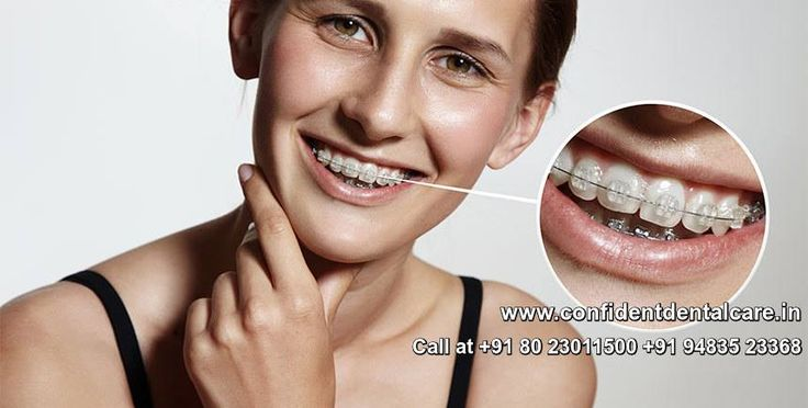 While an unattractive smile is not technically a dental problem, it may be considered a dental problem by people who are unhappy with their smile and it's also a major reason that many patients seek dental treatment. Call at +91 80 23011500 +91 94835 23368 http://confidentdentalcare.in/php/orthodontic-dental-braces.php  #Orthodonticstreatment #Adultbraces #Adultdentaltreatment #Orthodontics