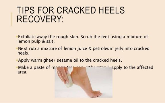 Pin By Skin Care And Fitness On Hand And Feet Care Hand And Foot Care Rough Skin How To Apply