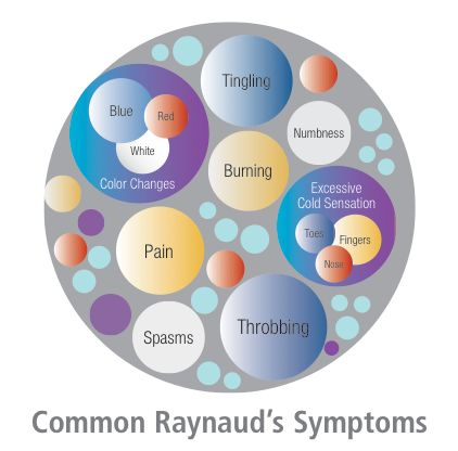 The Raynaud's Association — provide support and education to the millions of sufferers of Raynaud's Phenomenon