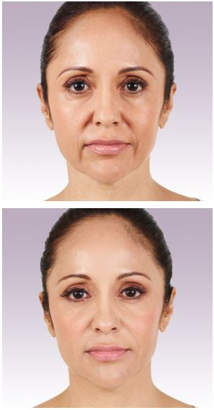 #Botox before and after