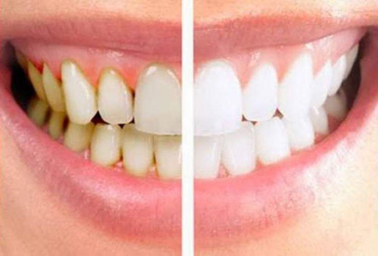 11 Remédios Caseiros para Eliminar o Tártaro dos Dentes