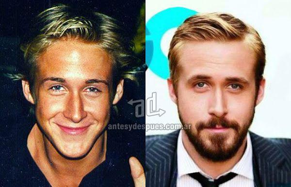 La nueva nariz operada de Ryan Gosling
