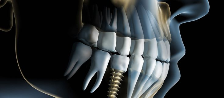 Dental implants are not for everyone, but certain conditions and circumstances may make dental implants the best and most popular dental option.