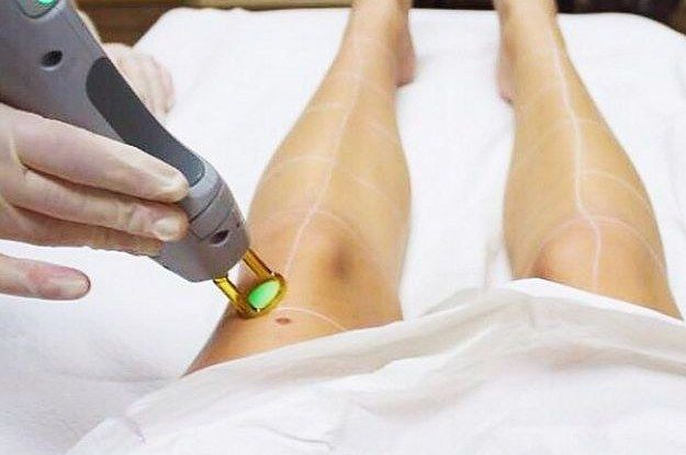 18 Things You Need To Know Before Getting Laser Hair Removal