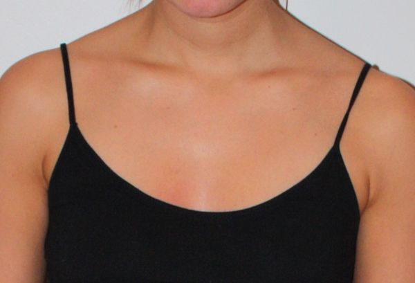 After St. Tropez spray tan: http://beautyeditor.ca/2014/02/24/st-tropez-spray-tan-review/