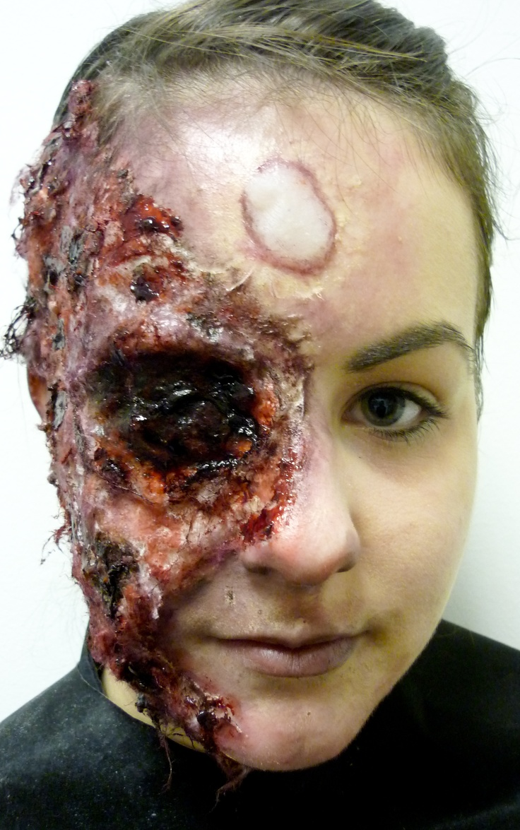 facial 3rd degree thermal burn with thermal blister