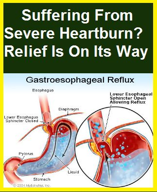 Natural Way To Get Relieve From Heartburn