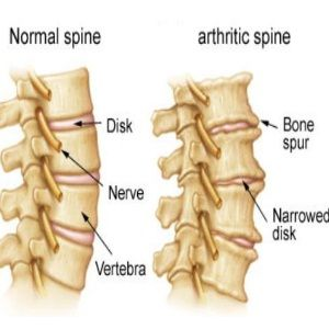 FIVE MAIN CAUSES OF SPINAL ARTHRITIS  I HAVE OA IN NECK AND LOWER BACK FROM AWFUL BACK ACCIDENT IN 1982. DEVELOPED DEGENERATVIE DISK DISEASE AND BONE SPURS ALSO.      SOUND FAMILIAR TO YOU?  mlbf:)