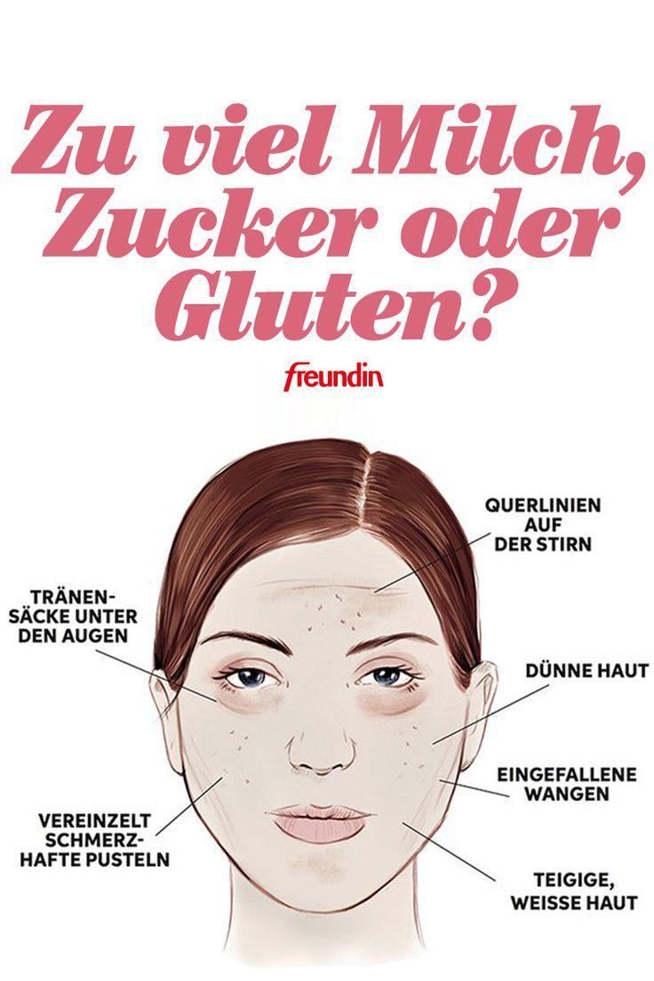 Zu viel Zucker, Milch oder Gluten? Ihr Gesicht verrät es Ihnen!