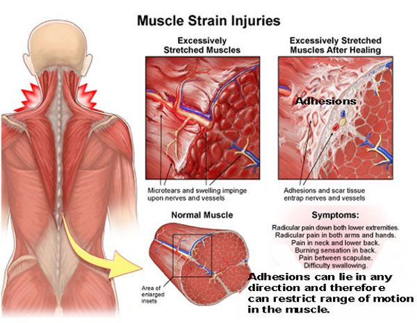 muscle-adhesions                                                                                                                                                                                 More