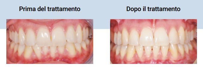 Ortodonzia invisibile  Allineatori trasparenti nell'adulto. IL DENTISTA MODERNO. White paper http://www.studiodentisticobalestro.com/2017/03/ortodonzia-invisibile.html
