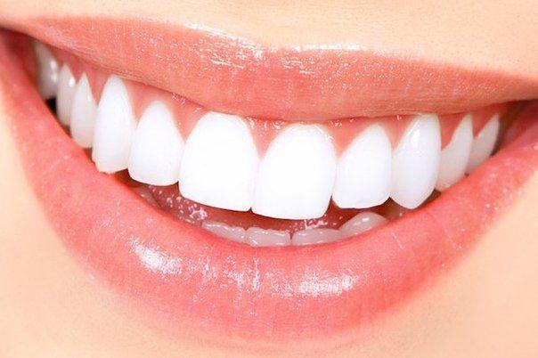 Как отбелить зубы в домашних условиях…   СвежачОК ☺