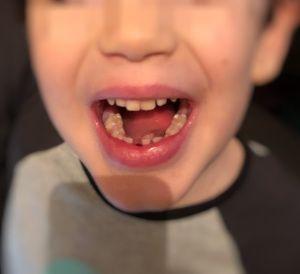 Erste Zahnlücke - das Vorschulkind hat den ersten Wackelzahn verloren