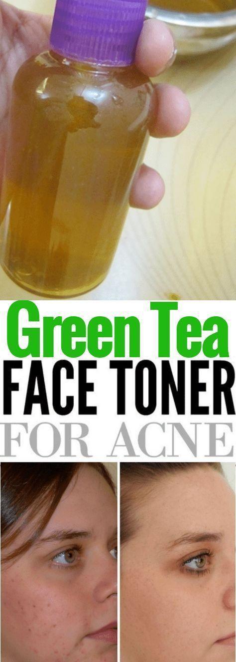 DIY Green Tea Toner for acne. One green tea bag st…