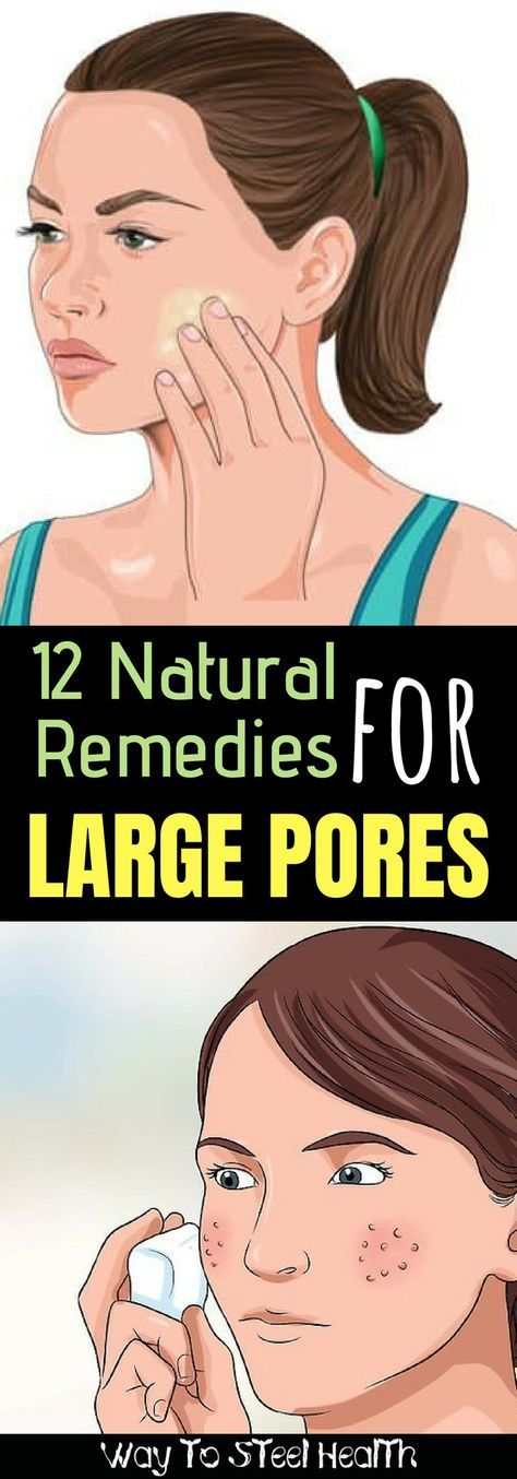 12 Natural Remedies To Get Rid of Large Pores