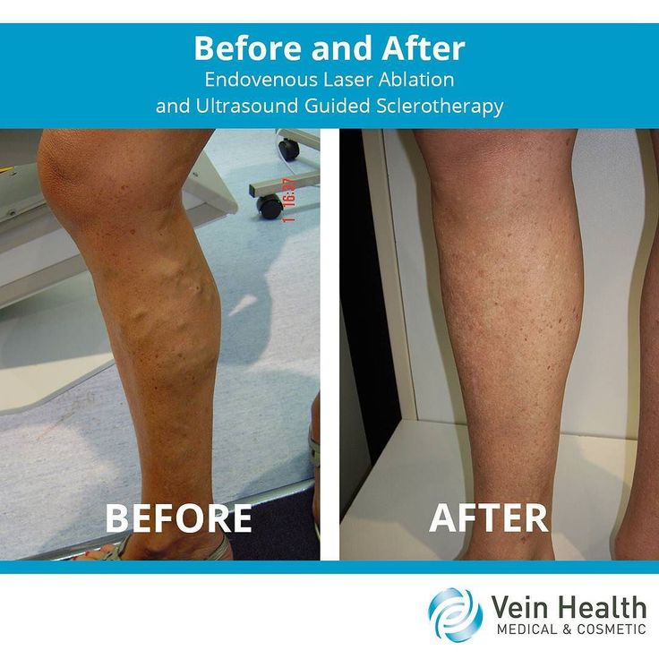 A 47-year-old woman presented with right lower leg varicose veins that were getting worse. We treated the great saphenous vein (the major vein in the leg) with endovenous laser ablation. We treated the surface veins with ultrasound guided sclerotherapy. Afterward there is no visible varicose veins scarring or abnormal pigmentation.#varicoseveins#varicose#vascular #veintreatment #spiderveins #treatment #health #healthylegs #clinic