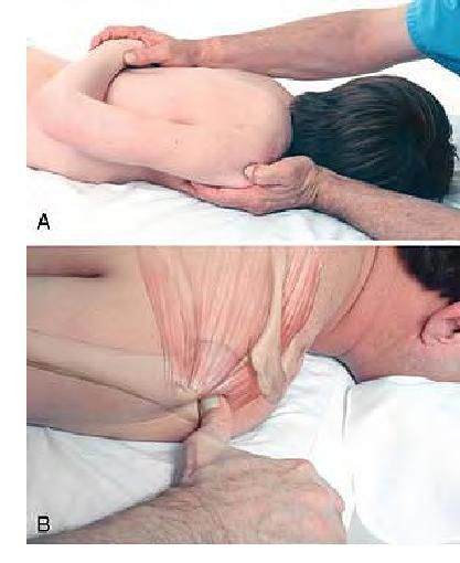 Basic Clinical Massage Therapy - Supraspinatus Attachment