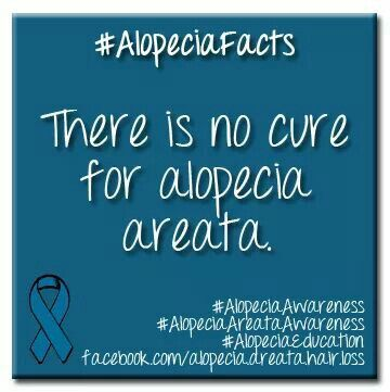 Hairstyles For Alopecia Areata : 56 best alopecia areata images on pinterest