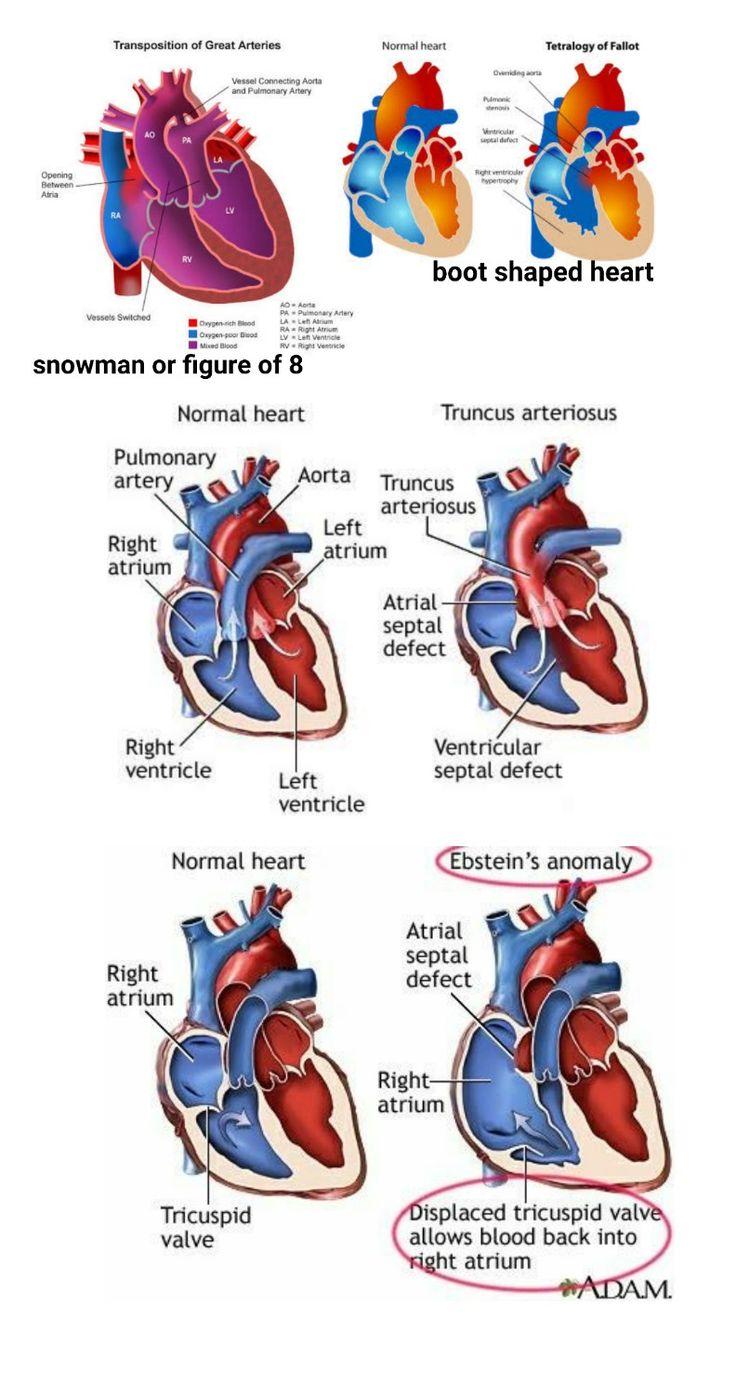 #TOF #TGA #Truncus arteriosus #Ebstein anomaly