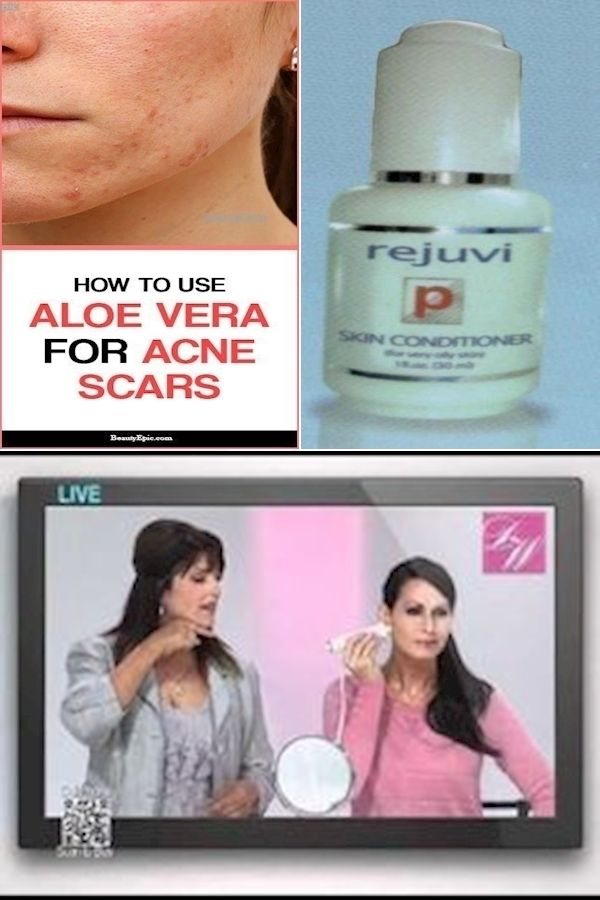 Best Moisturizer For Women Over 40 Top Skin Care Systems Korean Skincare For 40s In 2020 Healthy Skin Aloe Vera For Skin Top Skin Care Products