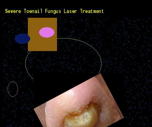 Severe toenail fungus laser treatment - Nail Fungus Remedy. You have nothing to lose! Visit Site Now