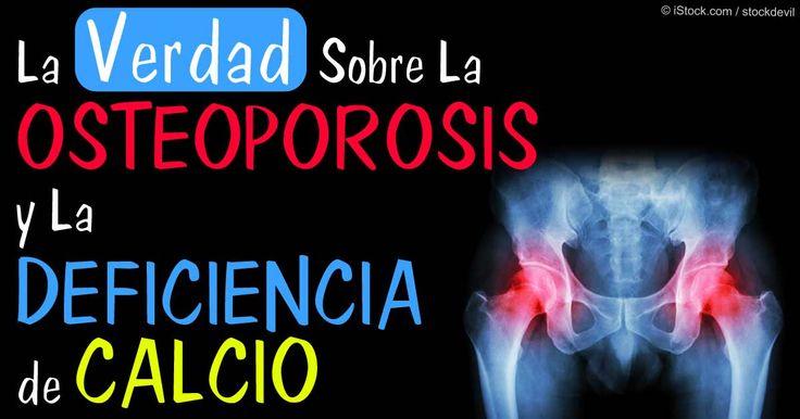 Descubra la verdad sobre la osteoporosis y la deficiencia de calcio y lo que puede hacer y puede evitar con el fin de prevenir la perdida ósea. http://articulos.mercola.com/sitios/articulos/archivo/2015/04/07/tratamiento-y-prevencion-para-la-osteoporosis.aspx