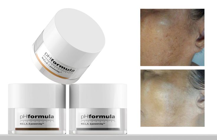 Developed as a dermatological skin resurfacing system, pHformula successfully treats skin disorders like ageing, hyperpigmentation, acne and chronic redness. With continuous scientific based research, the focus always remains on the development of innovative skin resurfacing treatments. #skincare #acne #antiaging