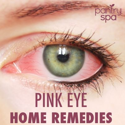 7 Conjunctivitis Home Remedies & Pink Eye Natural Treatments