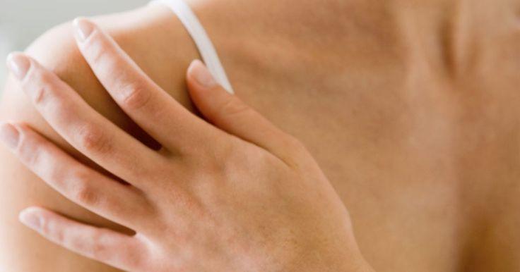 Síndrome do manguito rotador e síndrome dolorosa regional complexa. A síndrome de dor regional complexa (CRPS) é uma condição crônica, dolorosa que afeta geralmente os braços e as pernas. Ela raramente afeta outras partes do corpo. A síndrome do manguito rotador é quando os tendões do ombro estão inflamados e doloridos. A condição também é conhecida como tendinite do manguito rotador ou síndrome de impacto. A CRPS ...