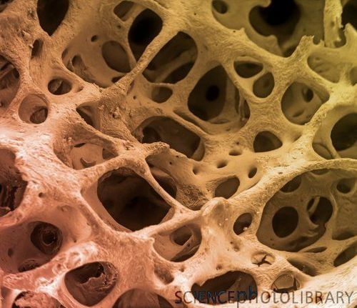 cancellous | the bone, while cancellous bone is found in the interior. Cancellous ...